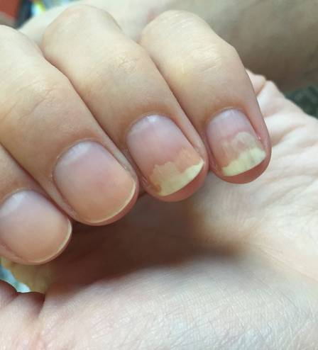 how to know if finger nail will fall off