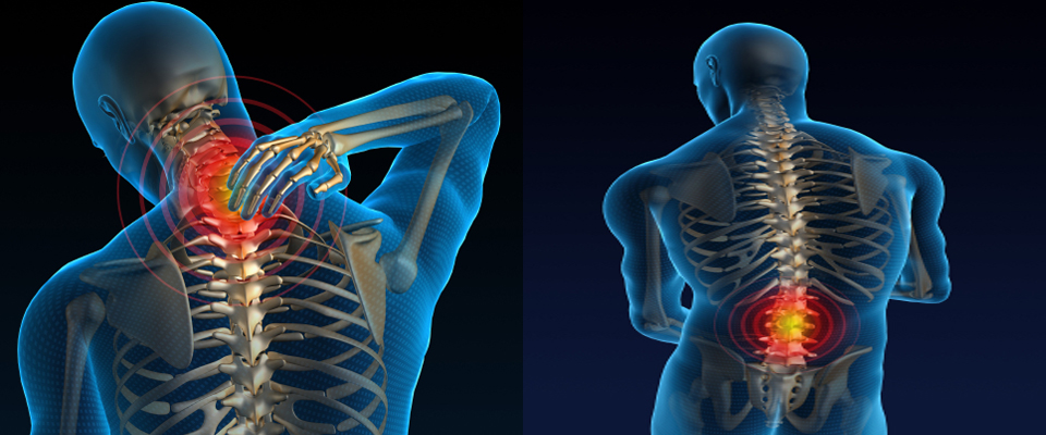 musculoskeletal disorders 2 ie 366 overview work posture and muscle fatigue cumulative trauma disorders (ctds) ctds of the upper extremities musculoskeletal disorders of the back musculoskeletal disorders of the leg.